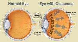 schema del glaucoma