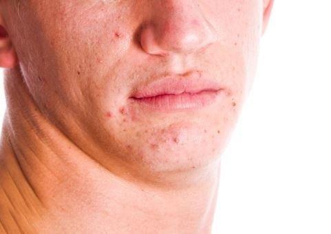 Trattamento per acne Ferretti DR. Oscar