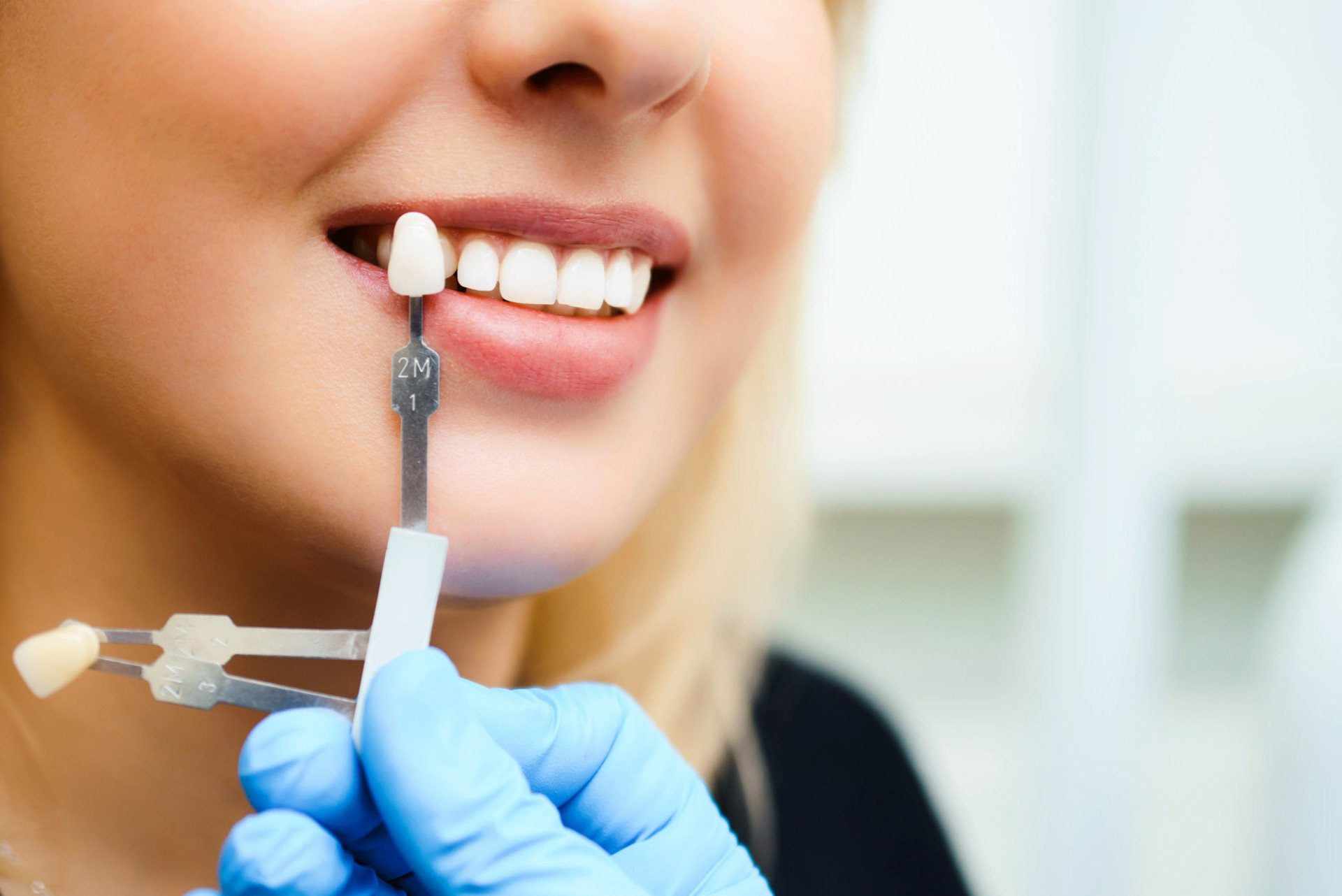 Say Cheese What To Expect During A Dental Implant Procedure