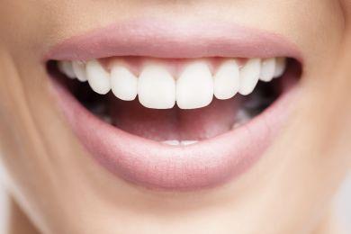 sorriso con denti sani e puliti