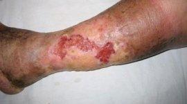 rinaldi dr. francesco, brindisi, ulcere sulla pelle