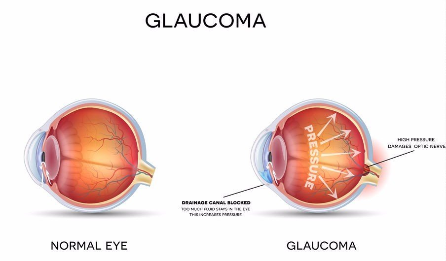 illustration of a normal eye versus an eye with glaucoma