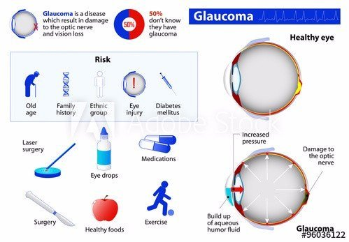 photo of a chart showing a healthy eye vs an eye with glaucoma with risk factors and treatment options