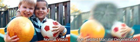 photographs comparing normal vision to that of someone with macular degeneration