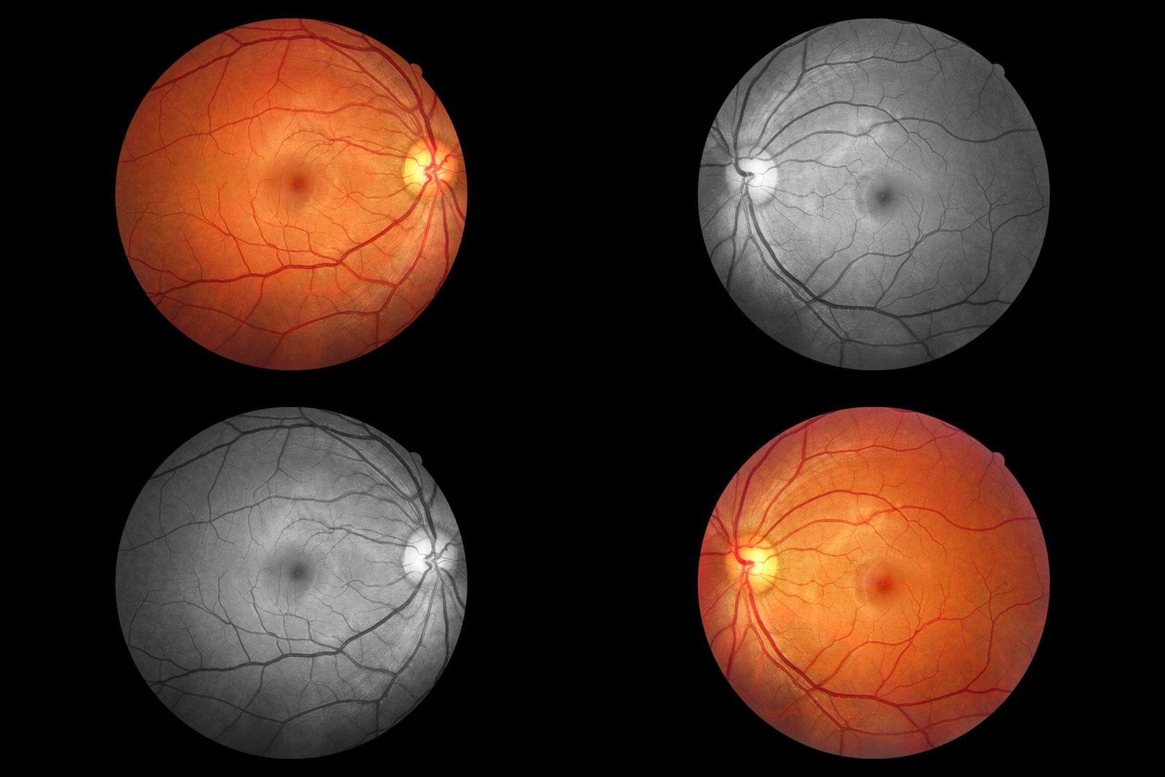 photo collage of fundus photography