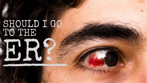 Should I Go To The Emergency Room If My Eye Hurts?