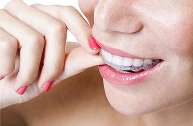 Ortodonzia infantile  e adulta