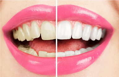 Detartrasi e Sbiancamento dentale