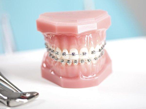 Ortodonzia infantile e adulta Piossasco