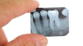 panoramica dentistica
