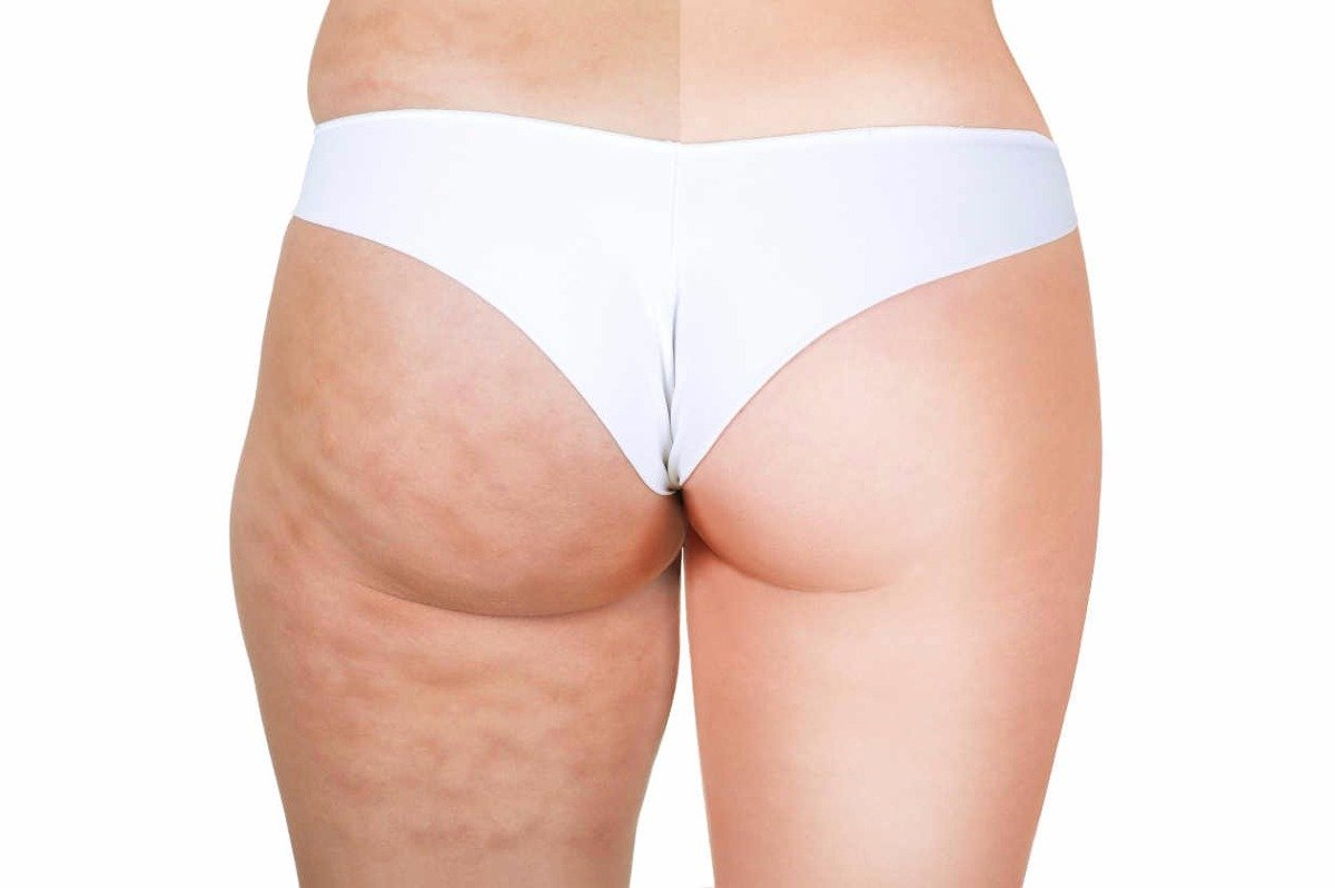 massaggio anti cellulite rassodante