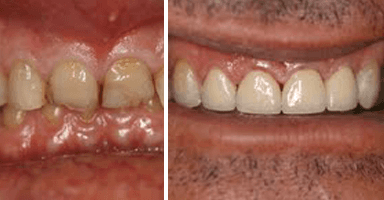mermaid beach dental surgery before and after