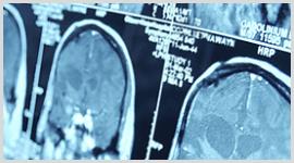 esami neurologici