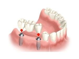 applicazione ponti dentali
