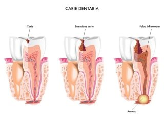 trattamento endodontico