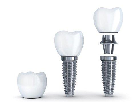 Implantologia Angera
