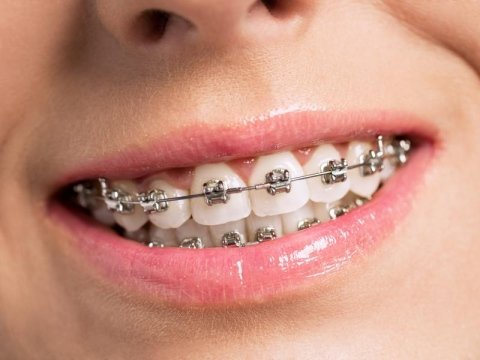 Ortodonzia Angera