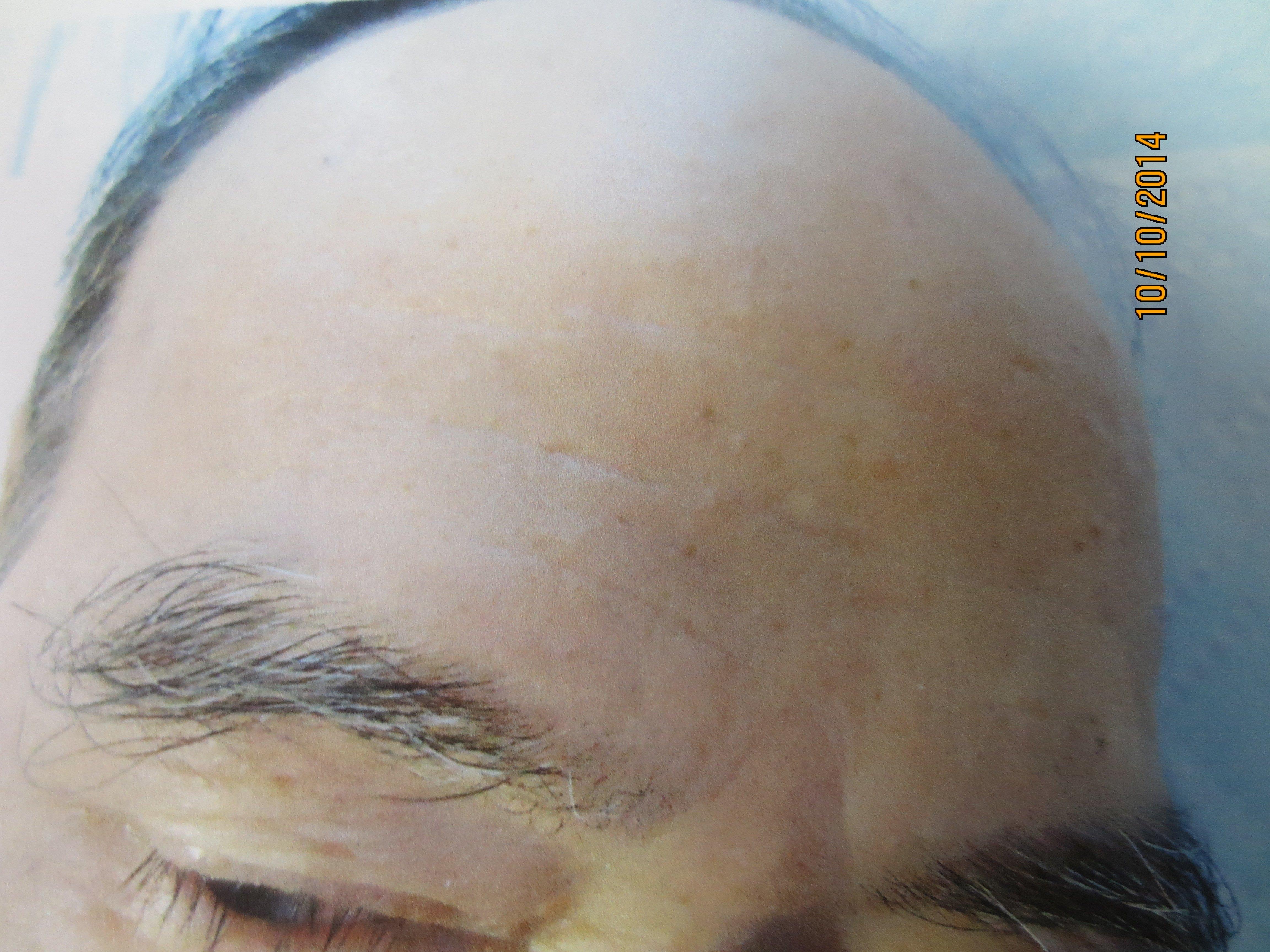age spot removal, dark spot removal, sun spot removal, mole removal