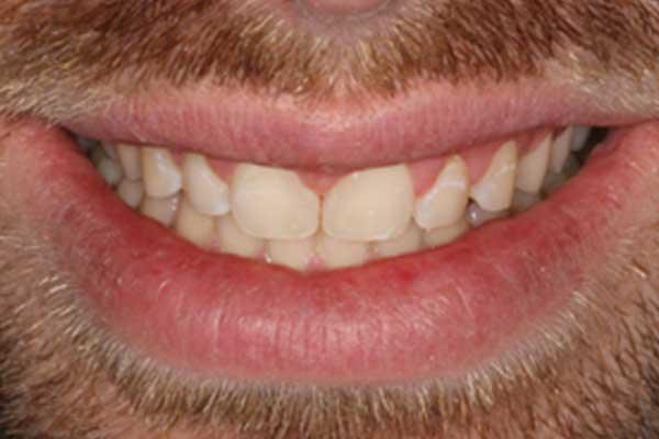 After Dental composite