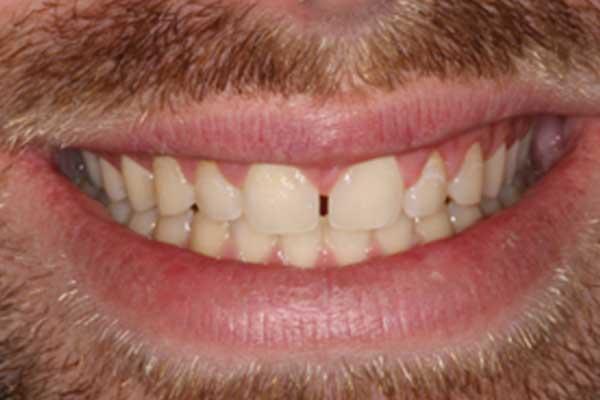 Before Dental composite