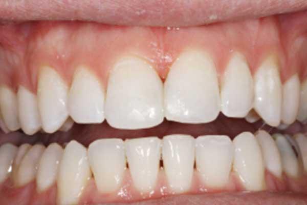 Dental composites after