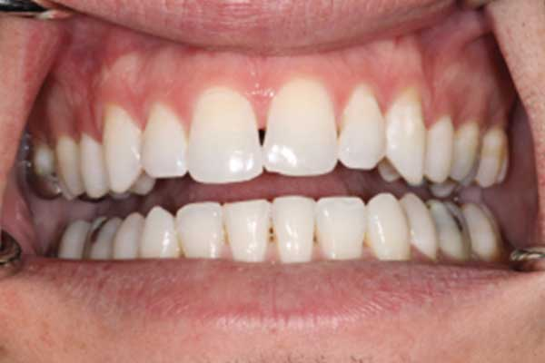 Dental composites before
