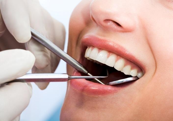 pulizia dentale