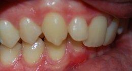 disinclusione ortodontica