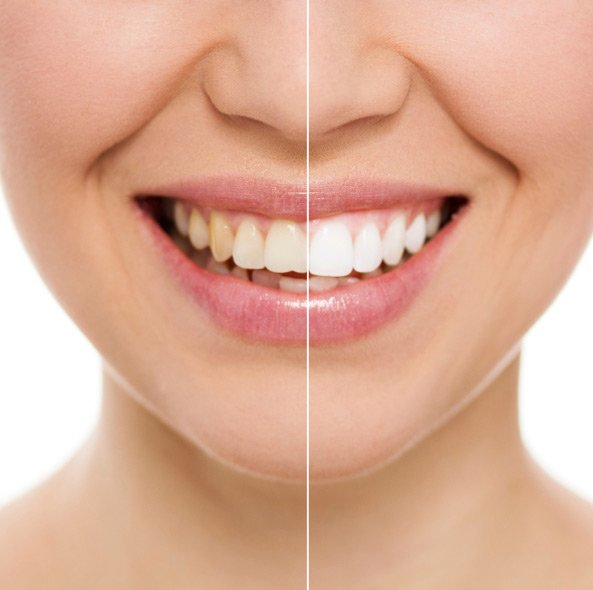 Before and after teeth whitening for a Cannington patient
