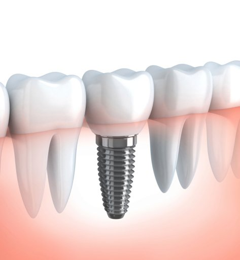A graphic of the dental implants we use for our patients in Cannington