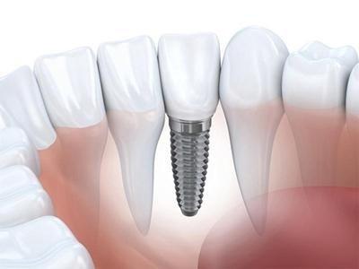 applicazione elementi dentali