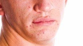 Simoni Dr. Luigi, Bari, malattie della pelle