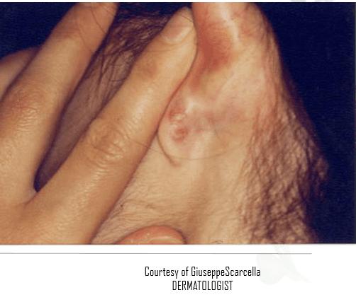 due dita che tirano in avanti l'orecchio per mostrare un irritazione cutanea sulla parte posteriore del lobo