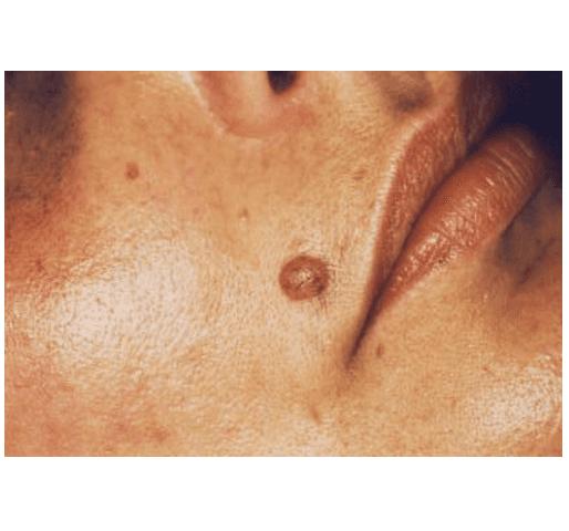 viso di un uomo anziano visto di lato dopo aver effettuato un trattamento contro l'iper pigmentazione