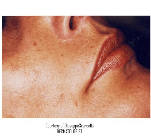 iper pigmentazione sul viso di un uomo anziano visto lateralmente