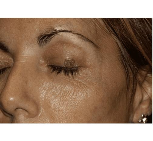 immagine della verruca scomparsa dalla palpebra dell'occhio sinistro di una donna grazie ai trattamenti