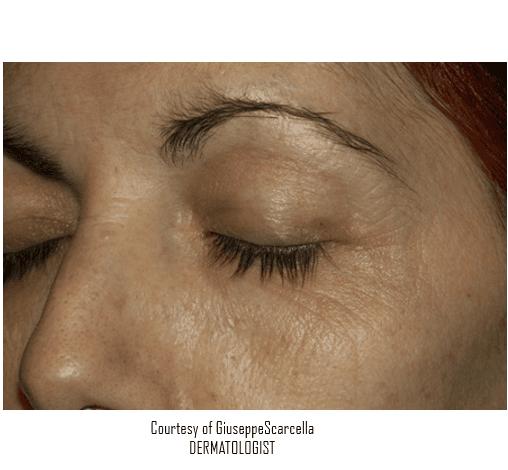 immagine di una verruca sulla palpebra dell'occhio sinistro di una donna -