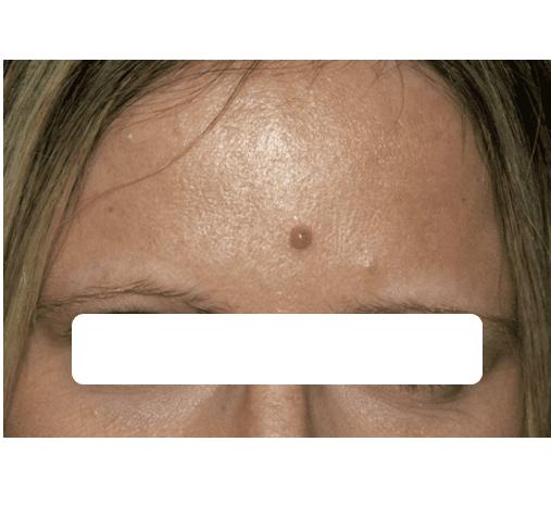 immagine della verruca scomparsa vicino alla bocca di una donna grazie ai trattamenti