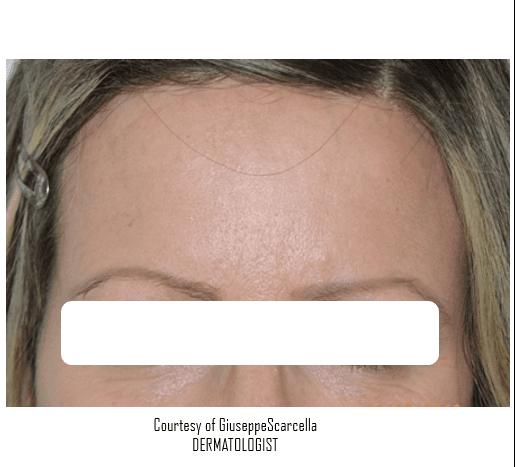 Viso di una donna con un  eruzione cutanea sulle palpebre e sotto gli occhi