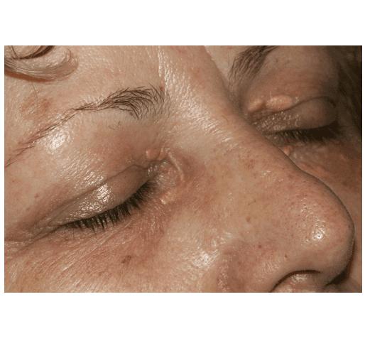 Viso di una donna senza l' eruzione cutanea sulle palpebre e sotto occhi dopo trattamento