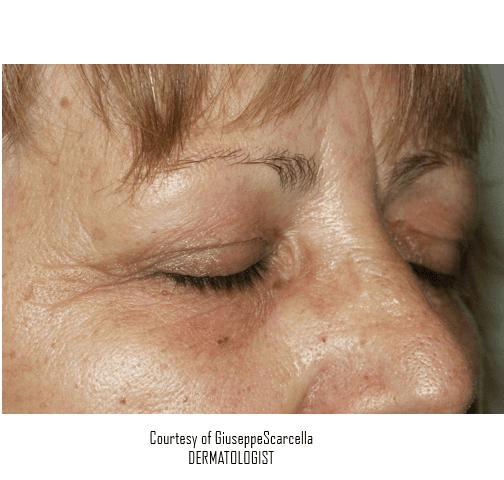 immagine della verruca sulla fronte di una donna scomparsa grazie ai trattamenti