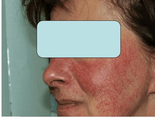 Viso di una donna con vene varicose sulle guance