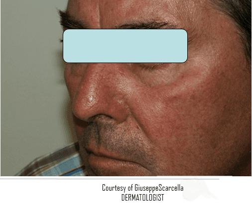 Viso di un uomo con vene varicose sul naso