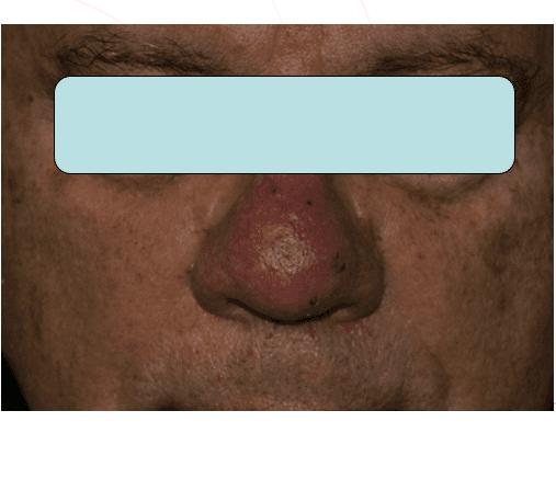 Viso di un uomo con macchie sul naso