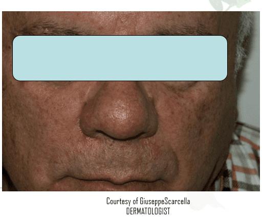 Viso di una donna senza arrossamento sulla guancia destra
