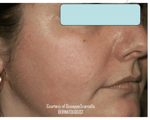 Viso di una donna con arrossamento sulla guancia destra