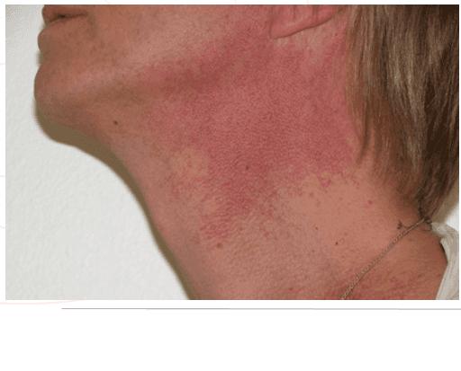Viso di una donna con arrossamento sulla zona del collo