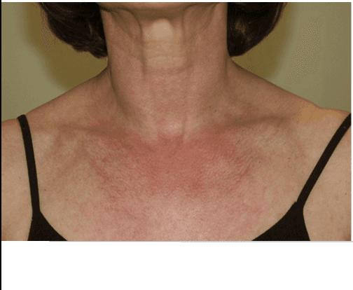 Viso di un uomo senza vene varicose sul naso