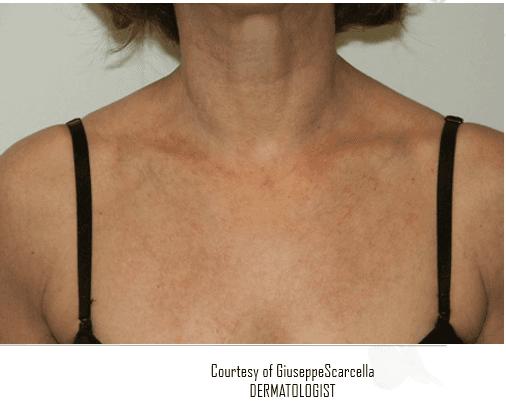 Immagine di una donna con arrossamento sul petto
