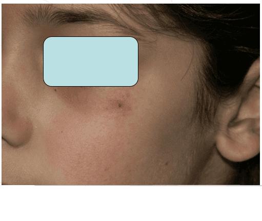 Immagine di viso di un uomo con una verruca nera sulla labbra